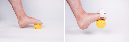 plantar enthesis Enthesopathy may be because of an inflammatory ailment just like psoriatic joint disease or an ailment caused by injury or overload such as plantar fasciitis these may also be associated with tenosynovitis or tendinitis in enthesitis.