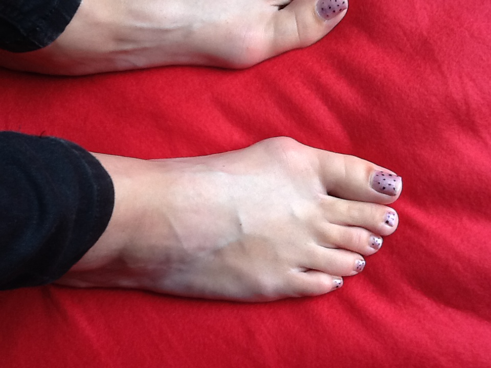 Bunion On Side Of Foot By Big Toe Bunion Treatment Bunion